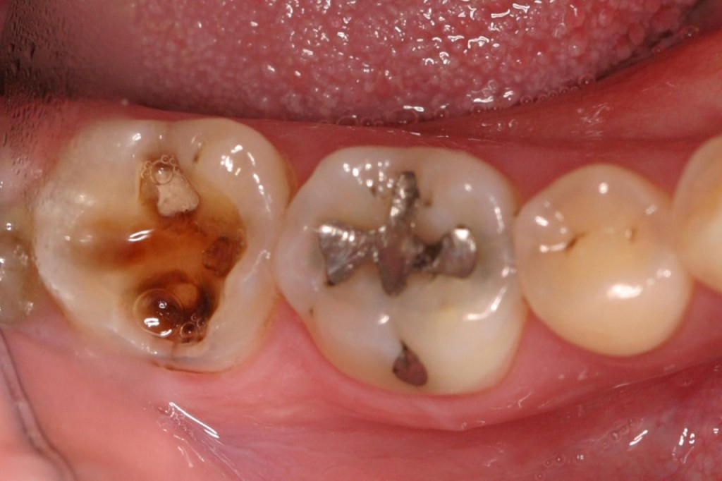 Tooth decay due to Acids